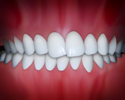 A crossbite can negatively affect your dental health.
