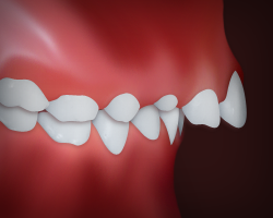 Upper front teeth protrusion is a common dental problem.