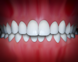 Common problems with teeth include overbite.