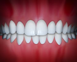 Dental Midlines are a common dental problem.