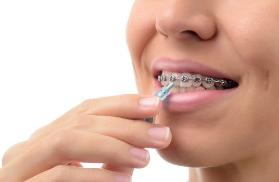 Five Hygiene Tips for Braces